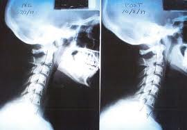esguince cervical indemnizaciones